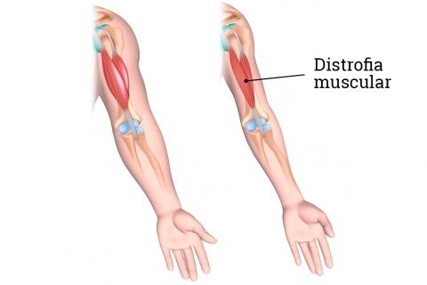 Distrofia muscular en Monterrey