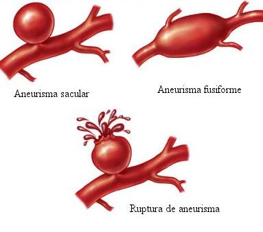 Tratamiento de aneurisma cerebral Monterrey