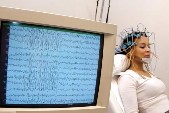 Electroencefalograma en Monterrey