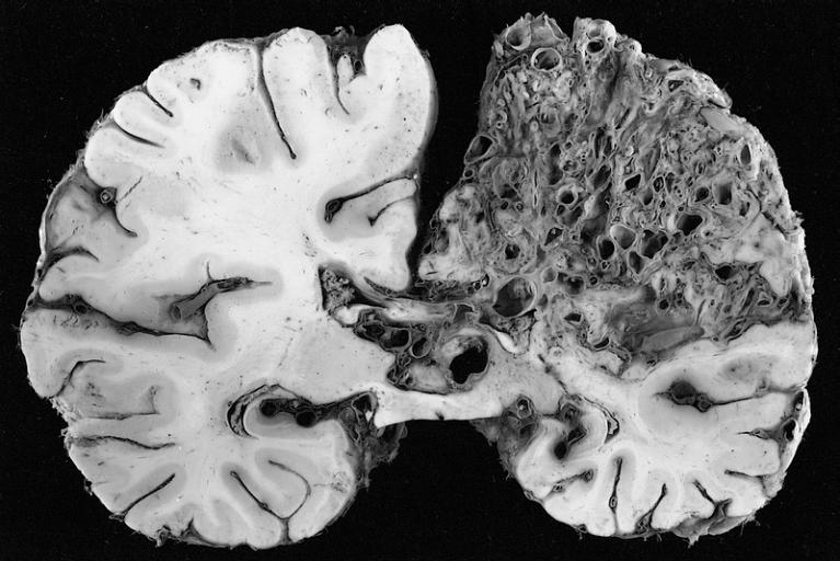 Tratamiento-para-malformacion-arteriovenosa-cerebral