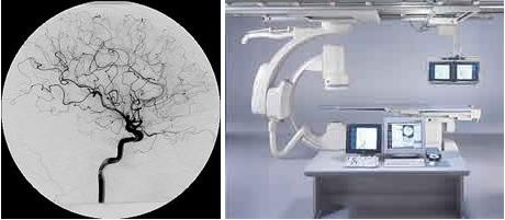 Neurocirugia endovascular