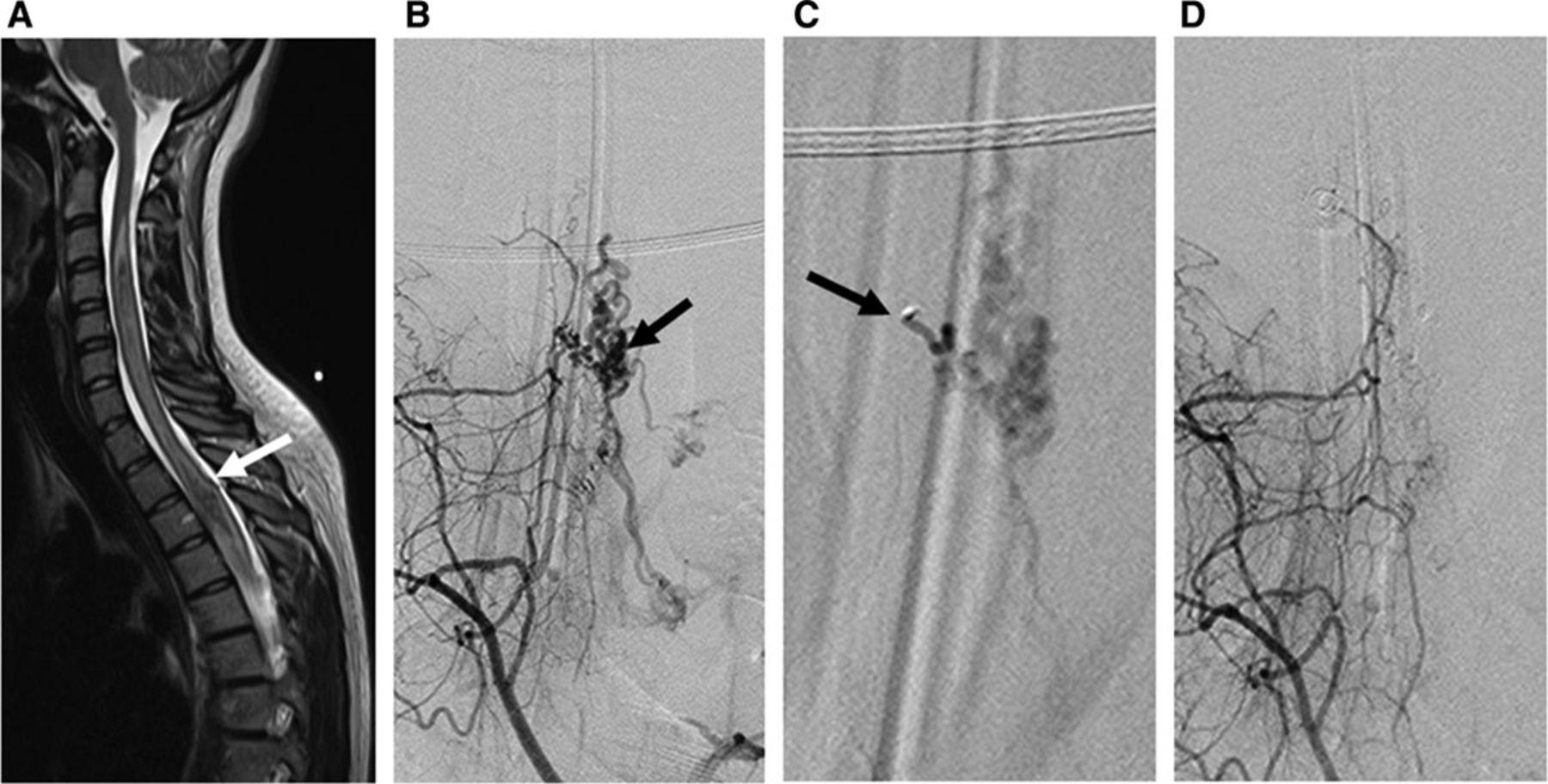 Malformación arteriovenosa espinal