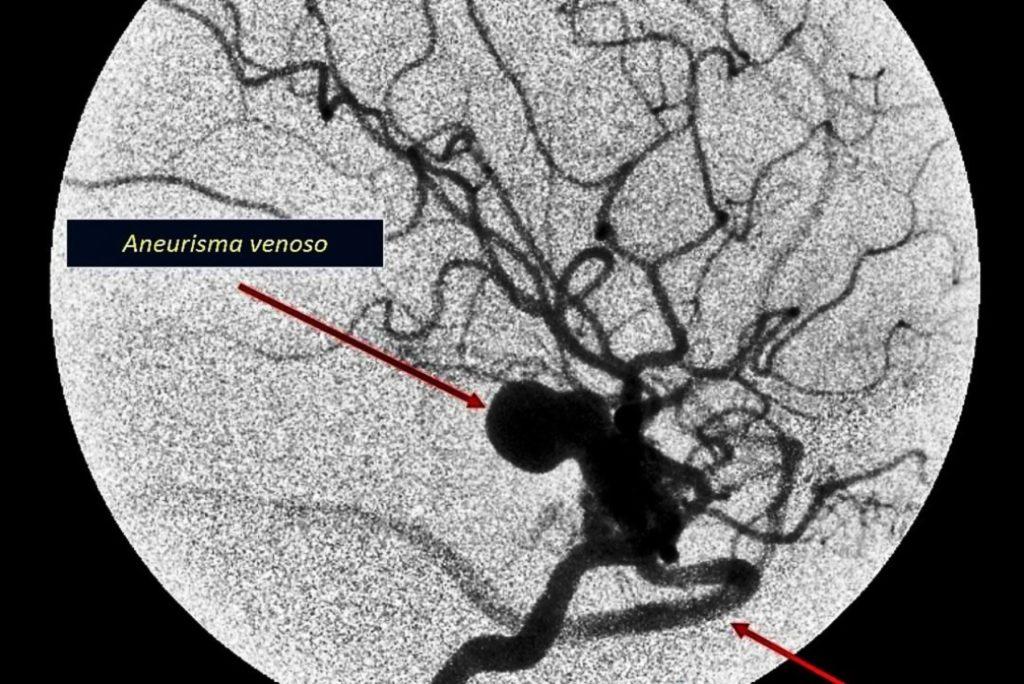 Obliteracion de malformaciones arteriovenosas