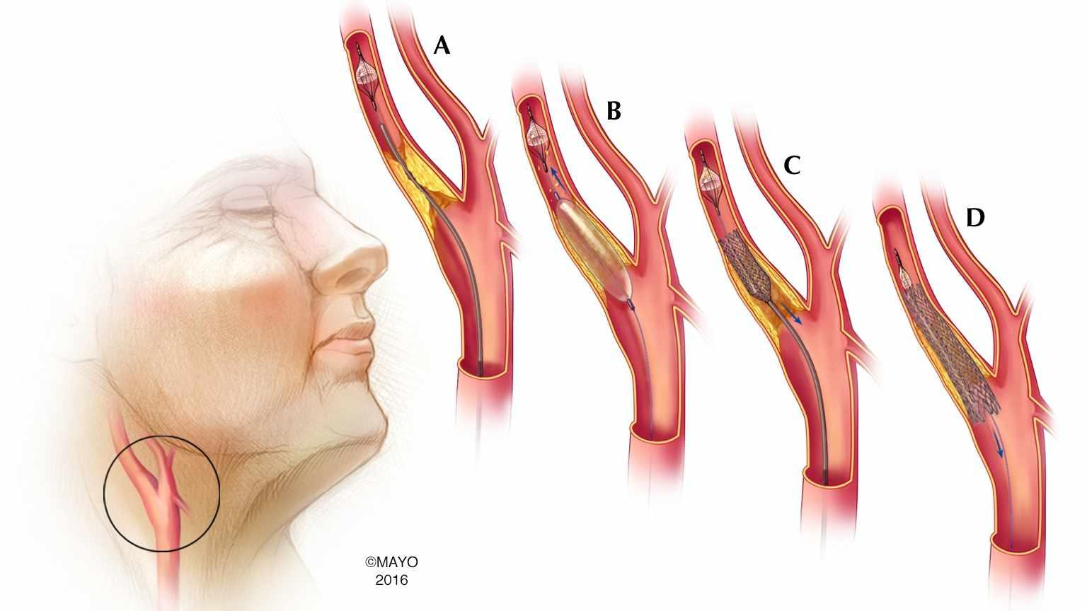 estenosis carotídea