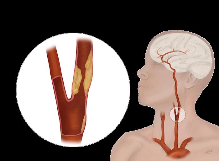 Aterosclerosis Carotídea