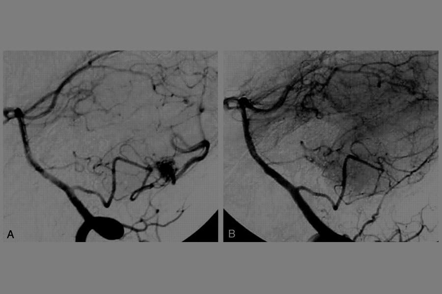 Malformaciones arteriovenosas cerebrales