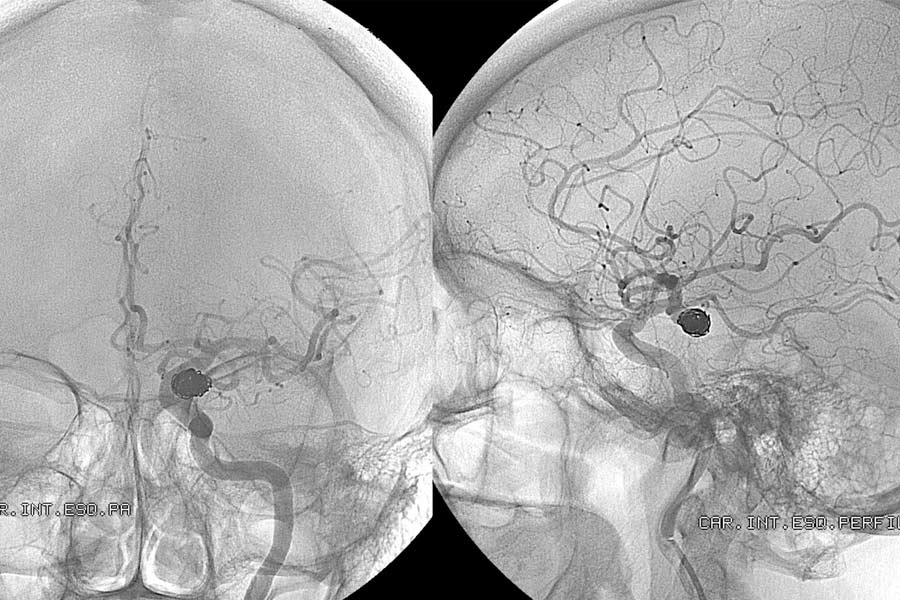 Monitoreo de micro-embolismos cerebrales
